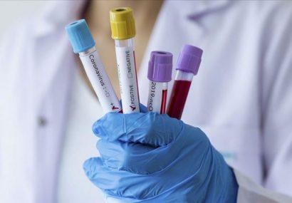 شناسایی ۲ هزار و ۵۳۶ بیمار جدید کرونا و فوت ۱۶۲ نفر دیگر